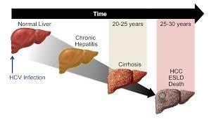 Hepatitis c súlycsökkenés. Hogyan növelhető a kalóriabevitel az egészség károsítása nélkül?